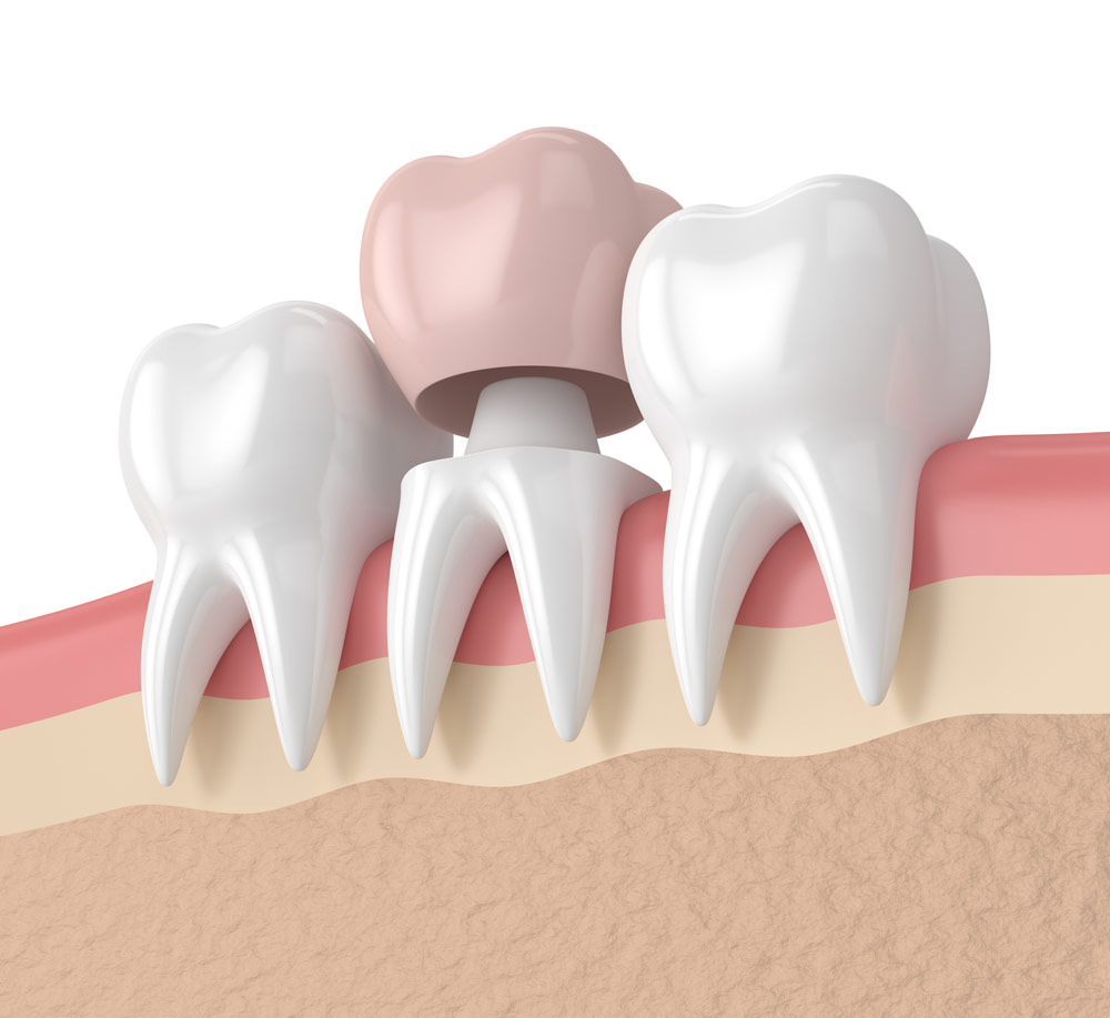 CEREC dentist in Colorado Springs