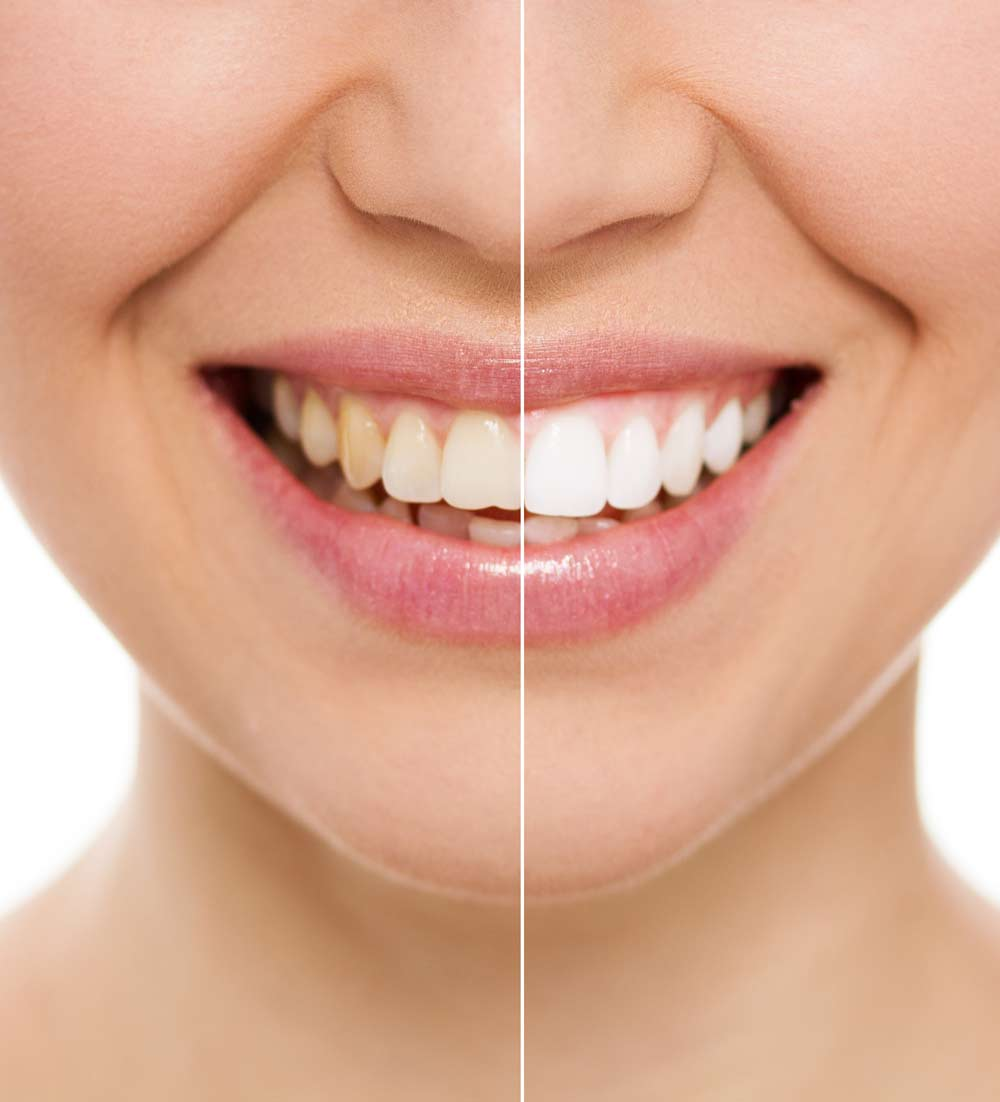 teeth whitening in Colorado Springs, Colorado